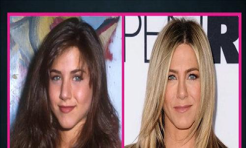 Gương mặt Jennifer Aniston sau 26 năm vào nghề