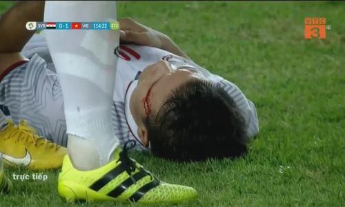 Quang Hải đổ máu trên sân cỏ