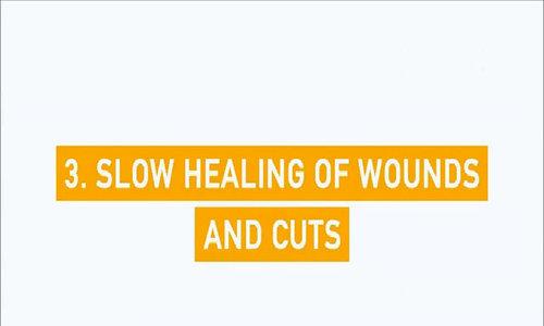 3. Vết thương lâu lành