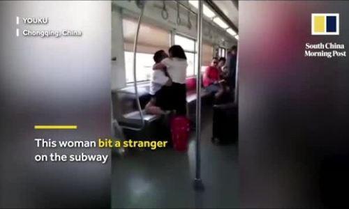Bị phụ nữ lạ mặt cắn vào mặt