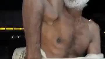 Người đàn ông có xương tay kỳ dị