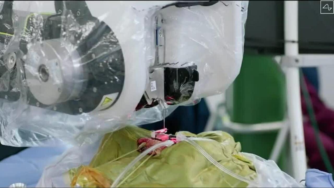Robot phẫu thuật cấy chip não của Elon Musk