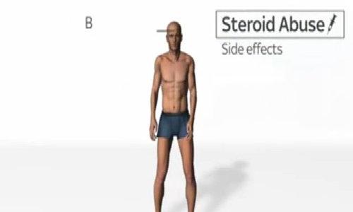 Thay đổi cơ thể khi lạm dụng thuốc tăng cơ Steroid