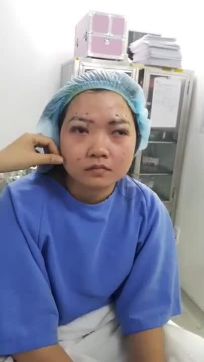 Cô nàng 9x thoát cảnh sụp mí mắt sau 20 năm