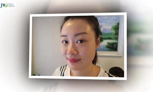 Cô gái Singapore vượt nghìn cây số đến Việt Nam thẩm mỹ mũi