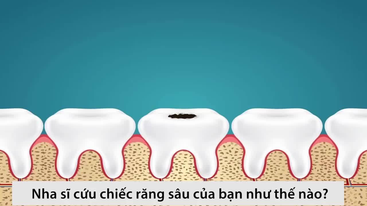 Nha sĩ cứu chiếc răng sâu của bạn ra sao?