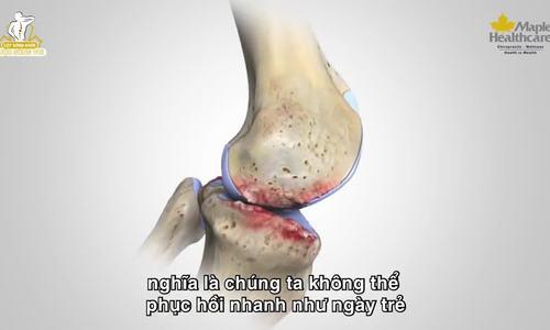 Các cách cải thiện đau nhức xương khớp ở người cao tuổi