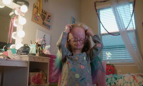 Cuộc sống của cô bé 10 tuổi bị lão hóa sớm