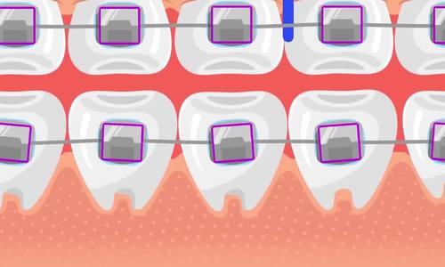 Vì sao niềng răng mất nhiều thời gian?