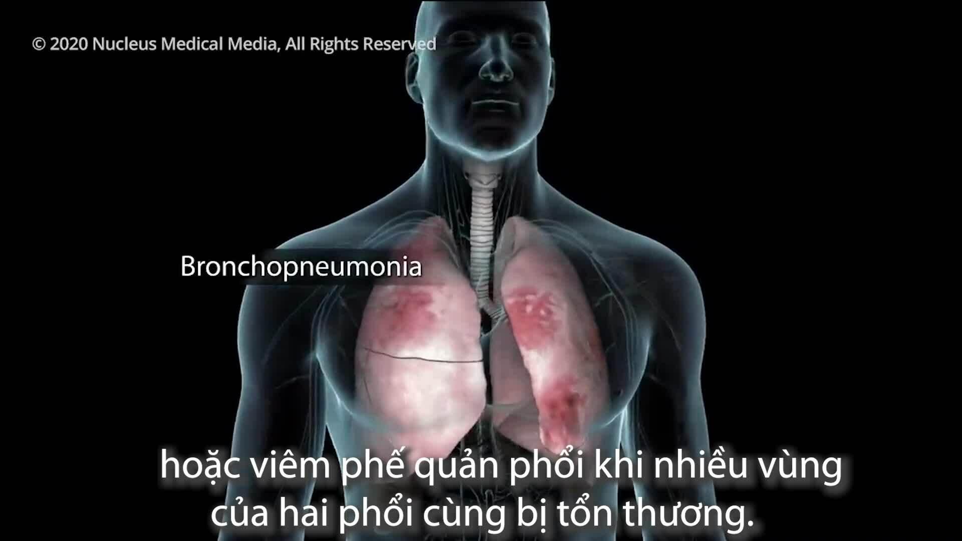 Cơ thể sẽ như thế nào khi bị nhiễm nCoV?