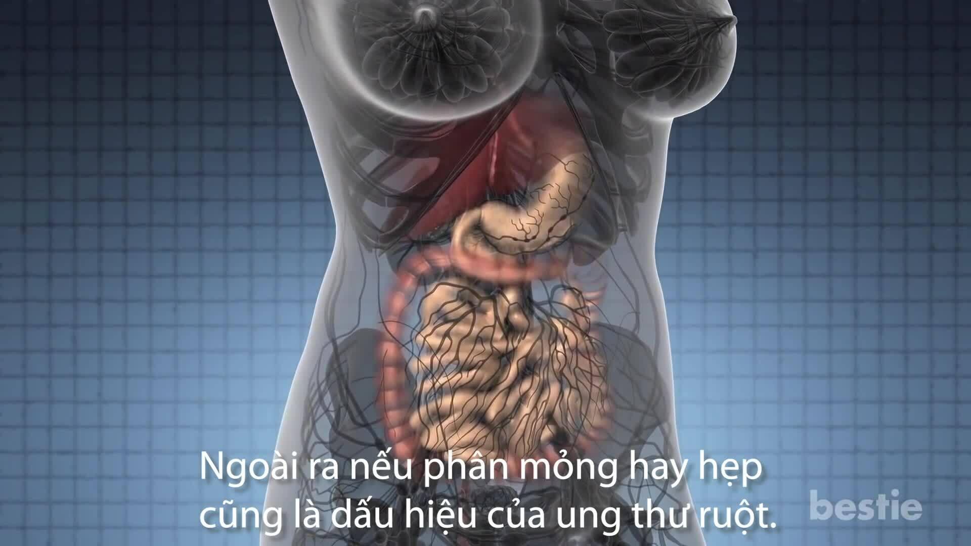 Những dấu hiệu sớm cảnh báo ung thư ruột