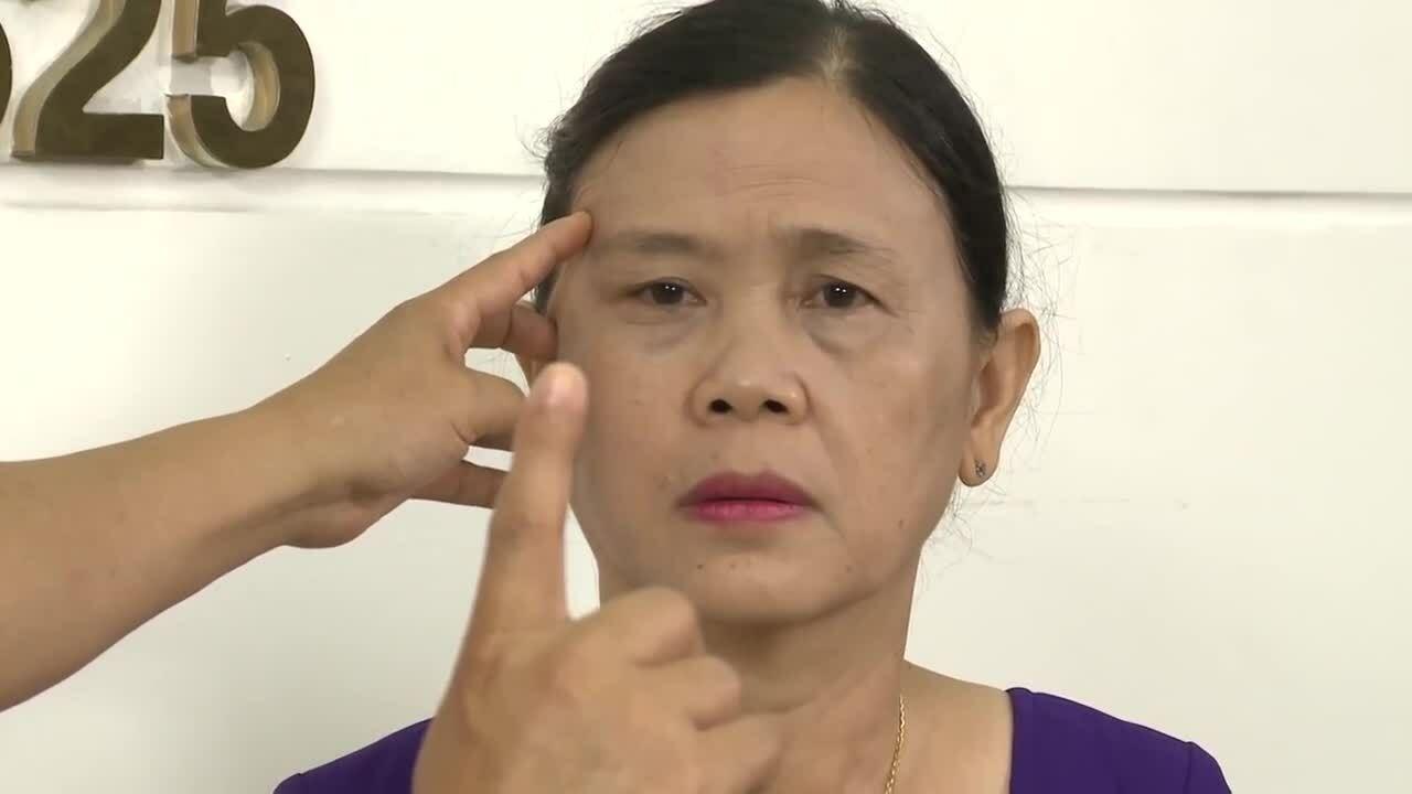 Những điều cần biết về giải pháp căng da mặt