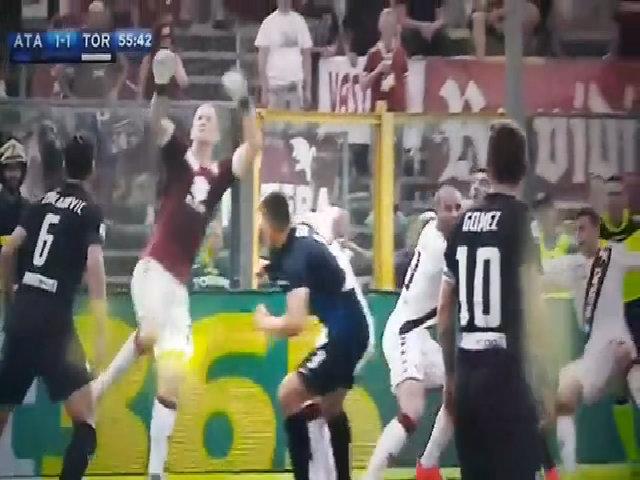 Joe Hart mắc lỗi dẫn đến bàn gỡ hoà 1-1 của Atalanta