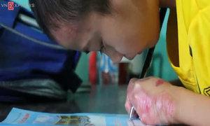 Nỗ lực tập viết của cậu bé bị dính liền ngón tay