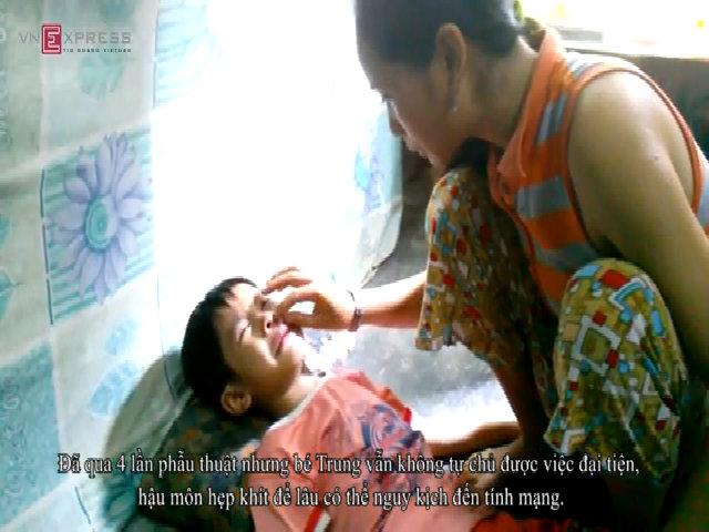 Cậu bé bị dị tật hậu môn bẩm sinh