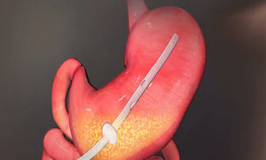 Thiết bị giảm cân bằng cách hút thức ăn trong dạ dày