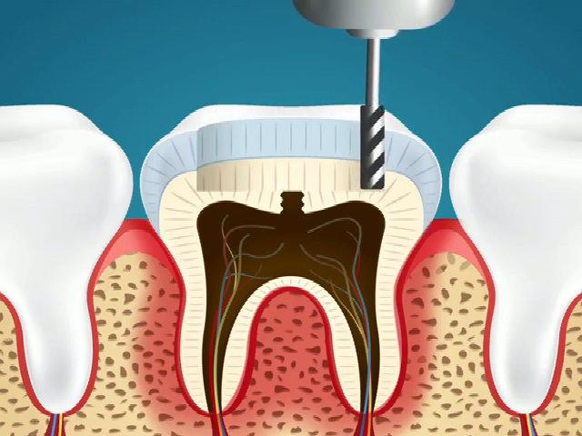 Bác sĩ cứu chiếc răng sâu của bạn thế nào