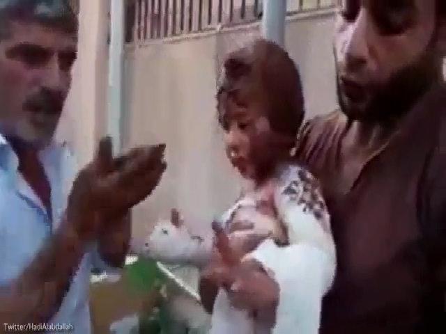 Phiến quân Syria đắp bùn chữa bỏng cho bé gái trúng bom