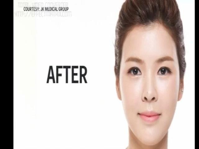 Cha mẹ Hàn 'lùa' con đi phẫu thuật thẩm mỹ