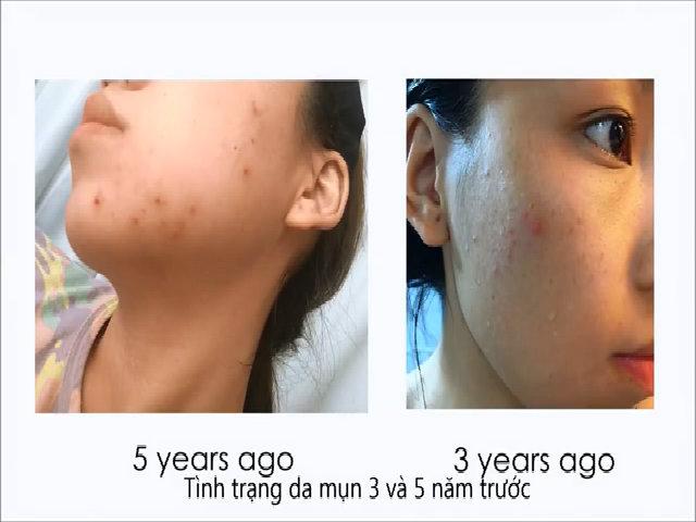 Tự làm mặt nạ chăm sóc da khỏe đẹp