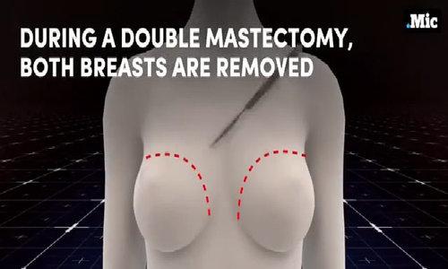 Phẫu thuật chuyển giới từ nữ sang nam diễn ra thế nào
