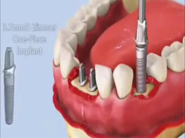 Quy trình gắn implant