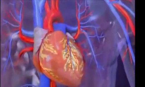 Dấu hiệu sớm cảnh báo cơn nhồi máu cơ tim