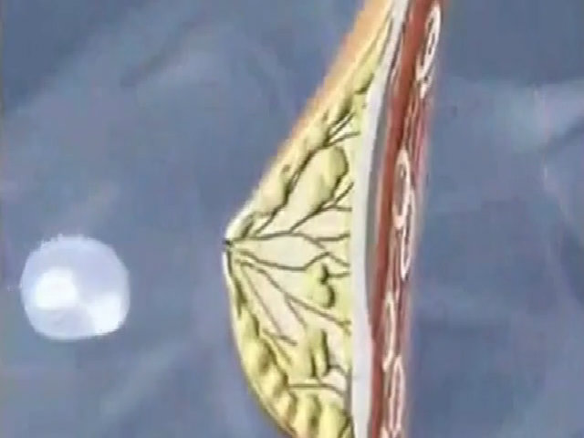 Bác sĩ nâng ngực bằng phẫu thuật nội soi như thế nào