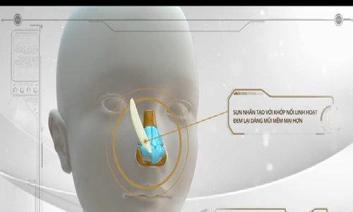 Bác sĩ phẫu thuật nâng mũi cho bạn thế nào