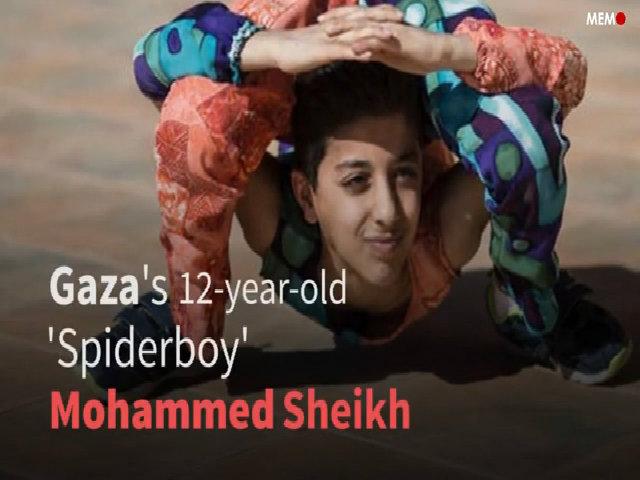 Cậu bé 'người nhện' lập kỷ lục thế giới về vặn mình