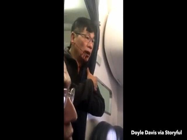 CEO hàng không Mỹ xin lỗi vụ hành khách gốc Việt bị kéo lê khỏi máy bay