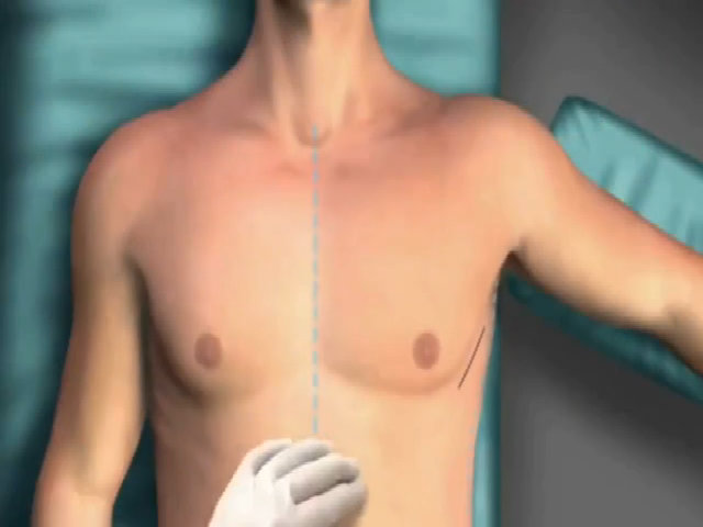 Bác sĩ phẫu thuật cấy máy tạo nhịp tim như thế nào
