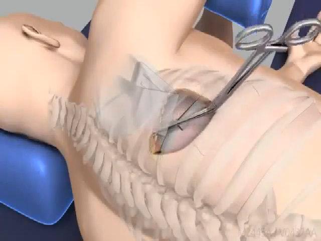 Bệnh nhân gãy xương sườn được bác sĩ cứu chữa thế nào