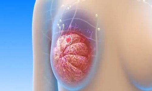 Ung thư vú hình thành và di căn như thế nào?