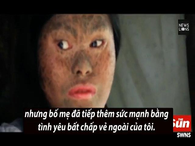 Thiếu nữ Philippines bị vảy đen phủ kín người