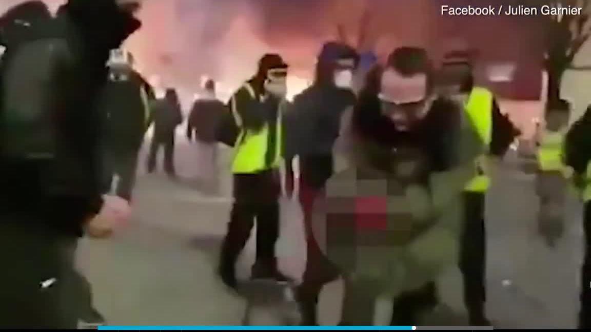 Người biểu tình Áo vàng Pháp bị nổ nát bàn tay
