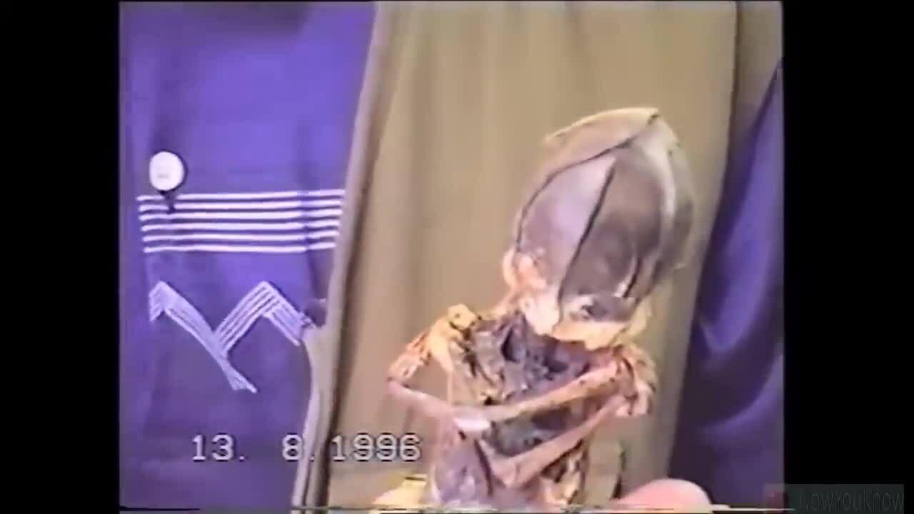 'Em bé ngoài hành tinh' được phát hiện ở Nga 23 năm trước