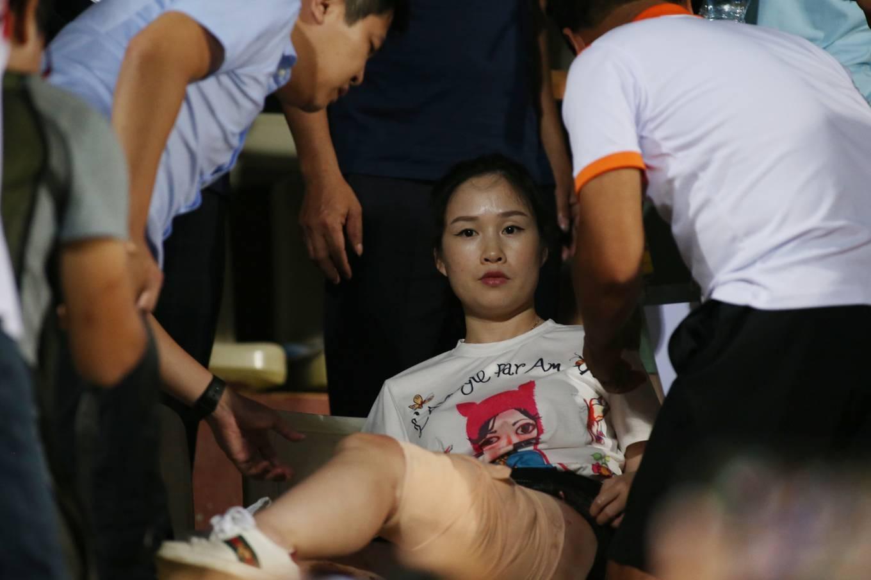 Nữ CĐV bị bỏng nặng do trúng pháo sáng