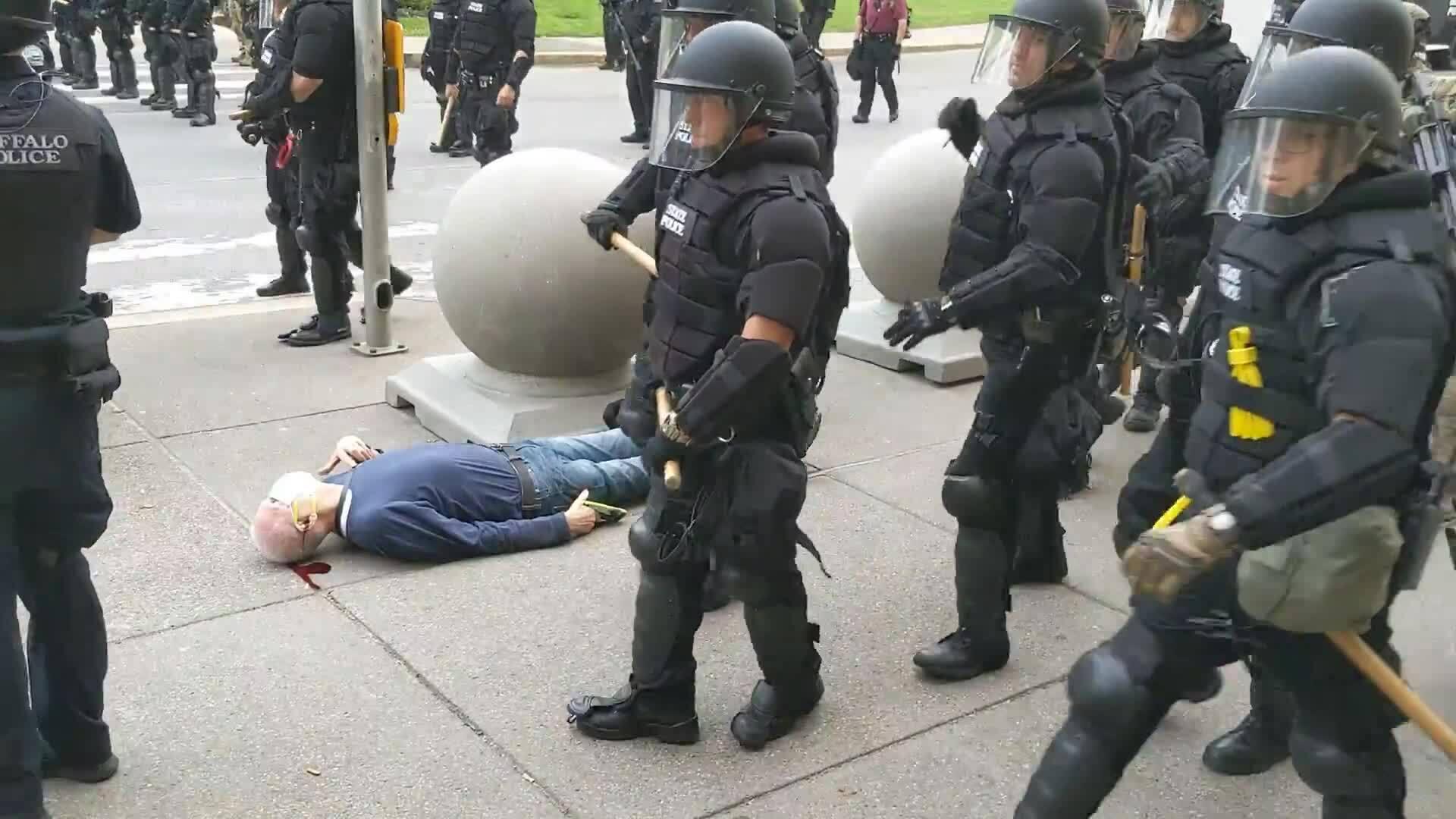 Cảnh sát Mỹ đẩyngười biểu tình ngã chảy máu