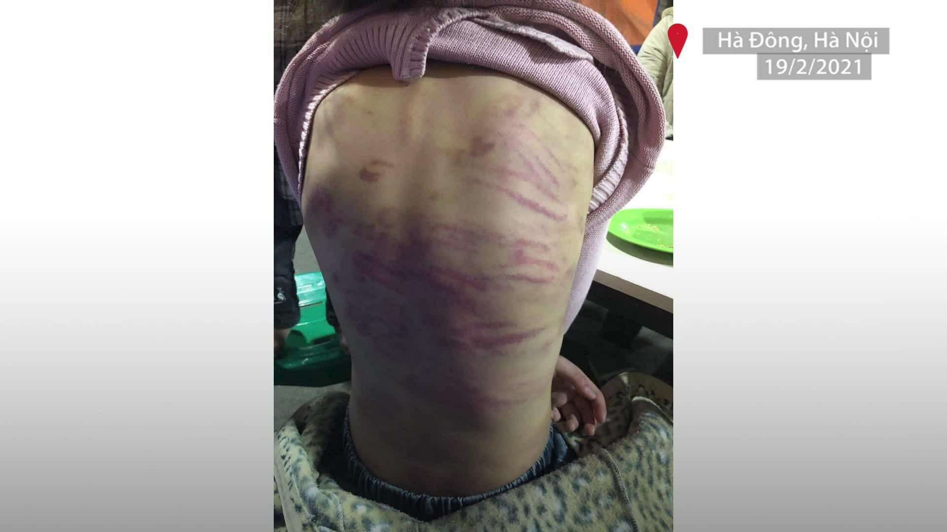 Lời kể của bé gái 12 tuổi bị xâm hại, bạo hành bé